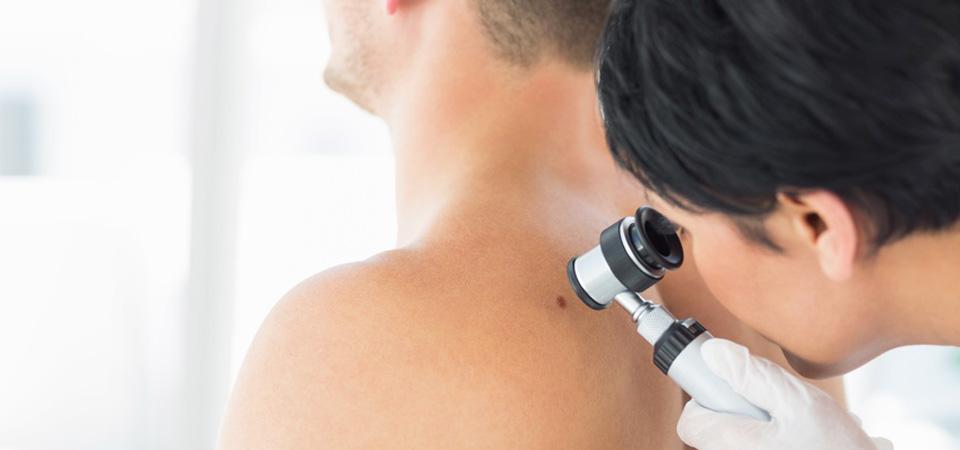 Hautuntersuchung